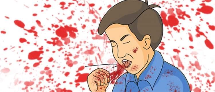 ağzından kan geldiğini görmek