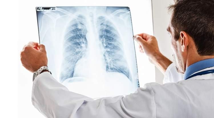 akciğer kanseri olduğunu görmek