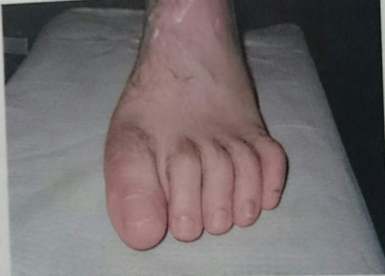 ayak parmak kopması