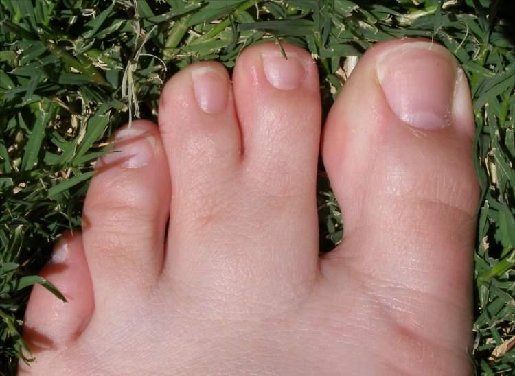 Rüyada Ayak Parmaklarının Çoğaldığını Görmek