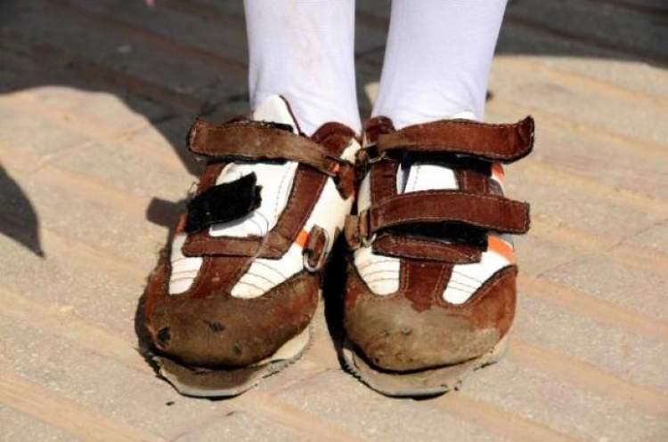 ayakkabının yırtık olduğunu görmek