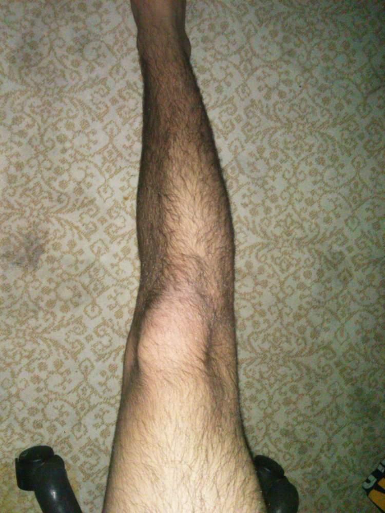 bacağını kıllı görmek
