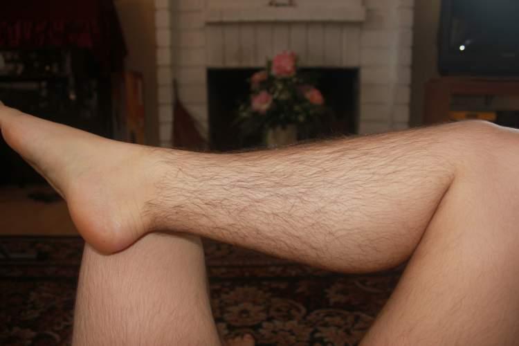 bacaklarda kıl görmek
