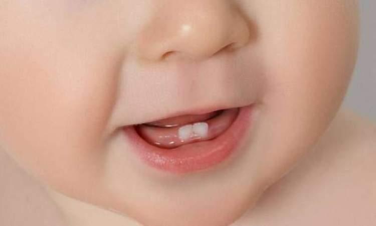 Rüyada Bebeğin Diş Çıkardığını Görmek