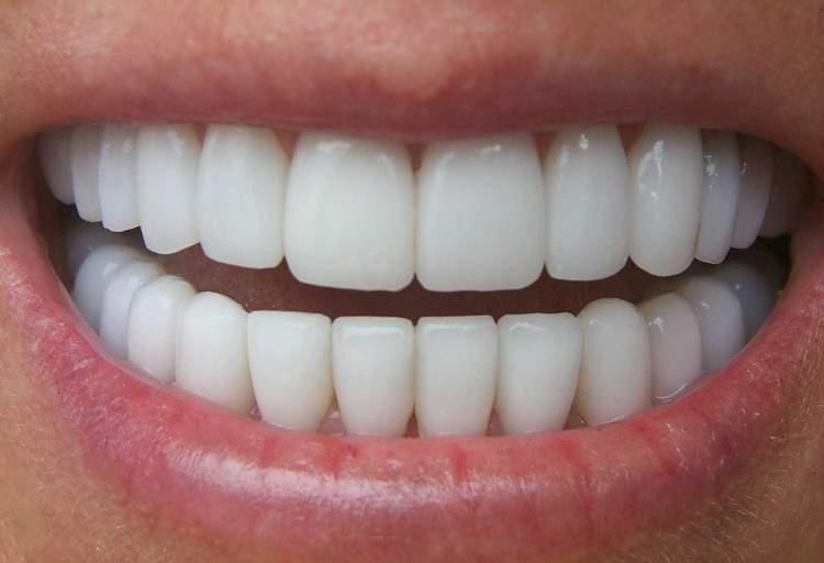 beyaz diş görmek