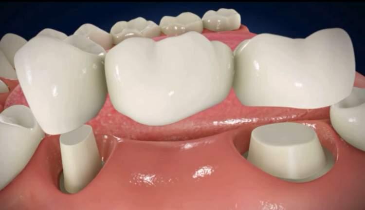 diş kökü görmek