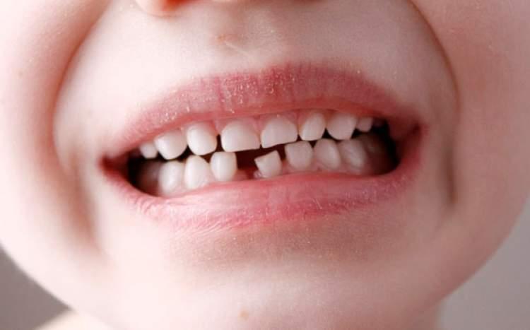 Rüyada Diş Oynaması