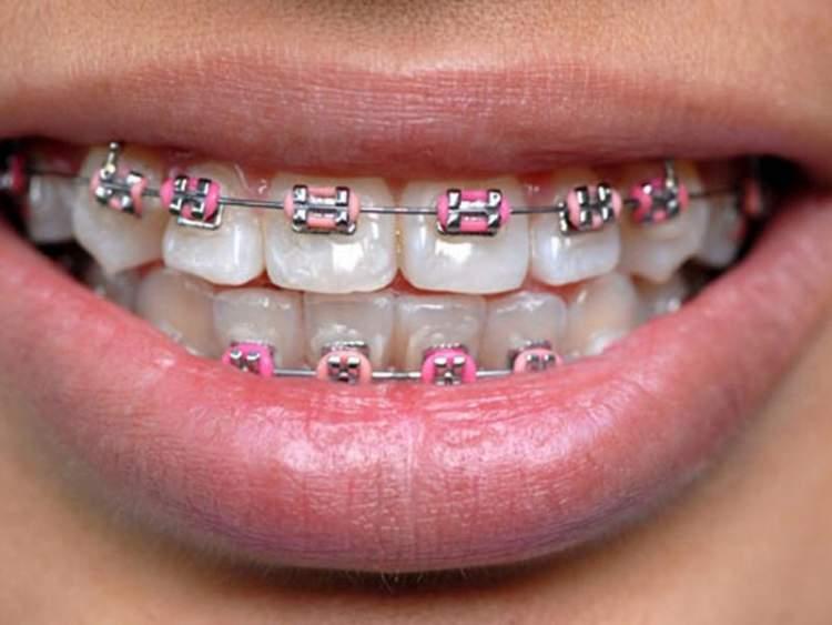 Rüyada Diş Taktırmak