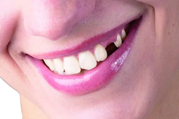 Rüyada Dişinin Çıktığını Görmek