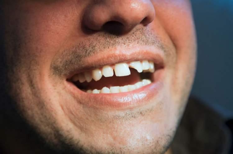 Rüyada Dişinin Kırılması
