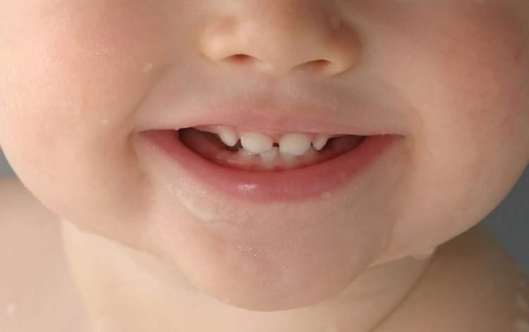 dişlerinin çıkması