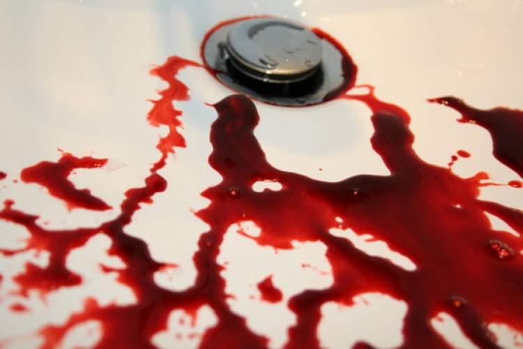 Rüyada Kan İşediğini Görmek