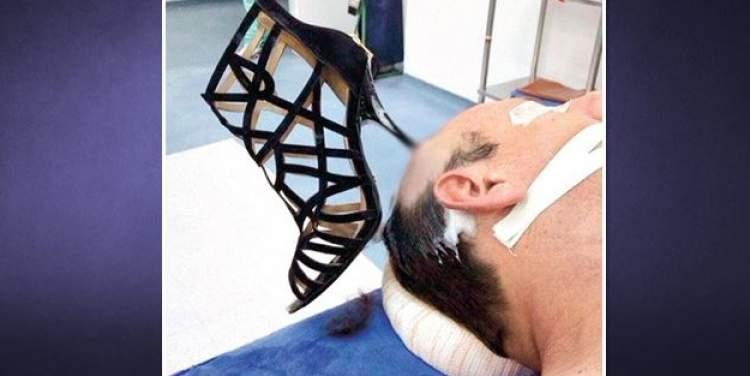 kocasını dövmek
