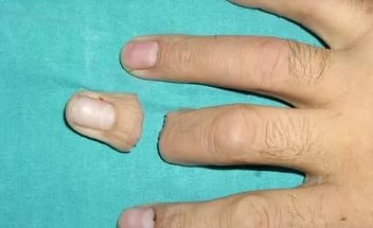 parmak kopması