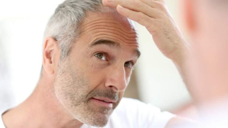 saç beyazlaması görmek