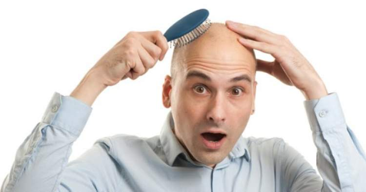 saç dökülmesi kellik