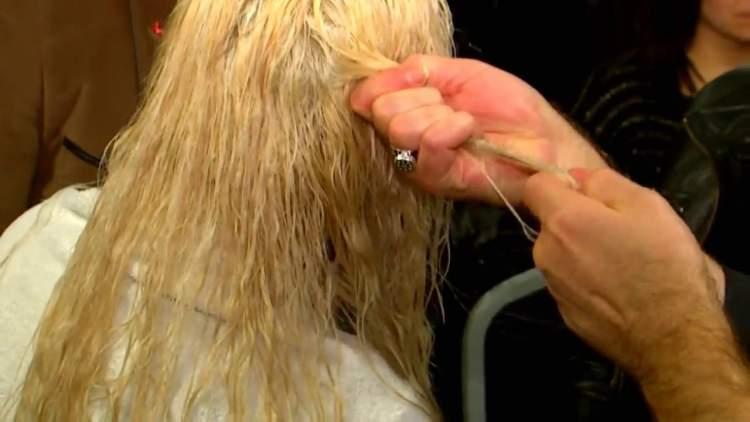 saç yanması görmek