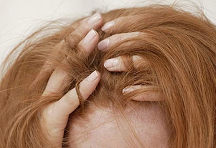 saç yolunması