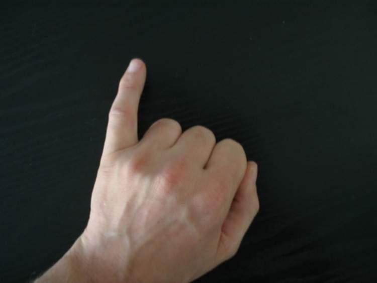 Rüyada Serçe Parmağının Kanadığını Görmek