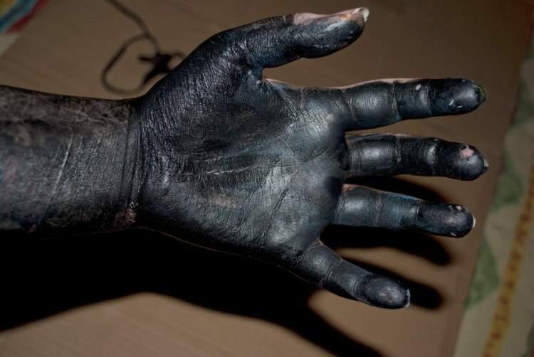 siyah el görmek