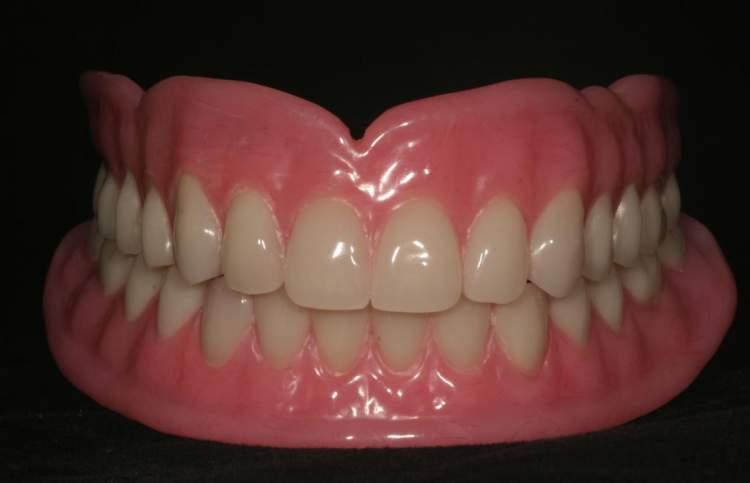 takma dişinin çıkması