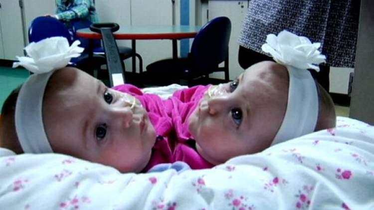 yapışık ikiz bebek görmek