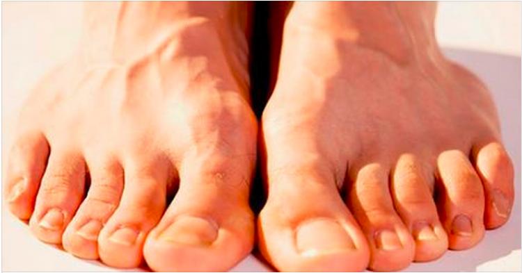 ayak parmaklarının fazla olduğunu görmek